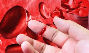 Механизм свертываемости крови и причины отклонения времени от нормы