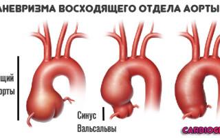 Аневризма аорты: Симптомы расширения аорты