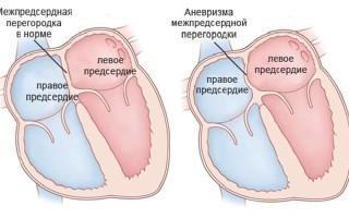 Аневризма сосудов сердца