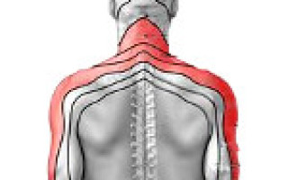 Причины развития шейного радикулита, симптомы патологии, выбор лечения, медикаменты и операция