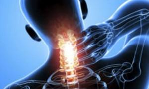 Патогенез, симптомы и лечение остеохондроза шейного отдела 3 степени