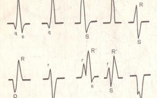 Вольтаж ЭКГ — причины появления, методы диагностики и лечения