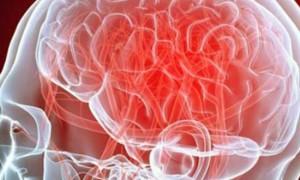 Кровоизлияние в ствол головного мозга прогноз