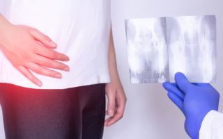 Лечение коксартроза 4 степени без операции – насколько оно эффективно?