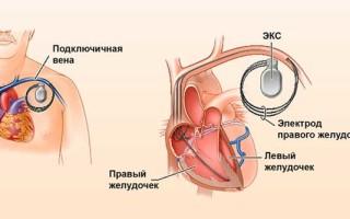 Как ставят кардиостимулятор