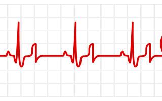 Что такое сердечная астма