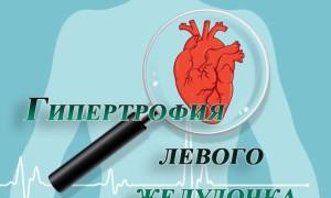 Умеренная гипертрофия левого желудочка
