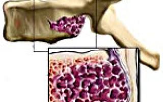 Каковы симптомы, диагностика и лечение гемангиомы позвоночника опасных размеров