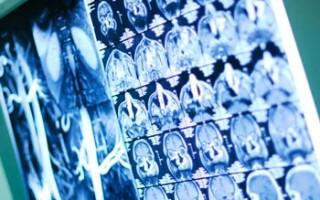 В чем разница между МРТ и компьютерной томографией и когда их проводят?