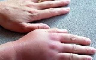Почему опухает палец на руке: характерные симптомы, диагностика и лечение в зависимости от причины