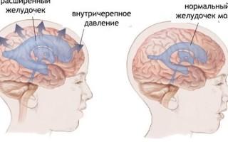 Лечение внутричерепной гипертензии у взрослых