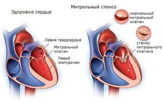 Брадикардия сердца что это значит у взрослого