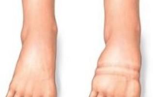 Текут ноги при сердечной недостаточности