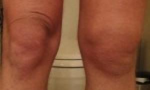 Причины, симптомы, диагностика и лучшие методы лечения болезни Гоффа коленного сустава