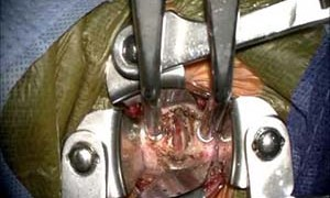 Методы лечения межпозвоночной грыжи поясничного отдела без операции различными методами