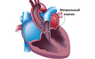 Митральный клапан сердца