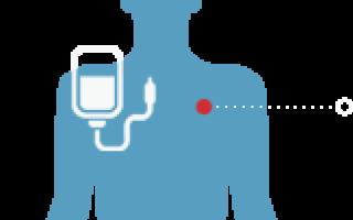 Показания к назначению анализу крови на РЭА, что означают результаты, какие заболевания он выявляет и зачем проводится?