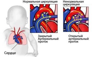 Сколько живут люди с пороком сердца