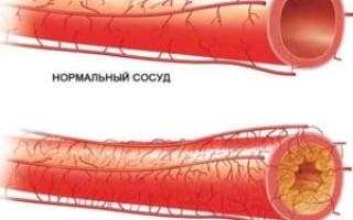 Лечение артерий нижних конечностей