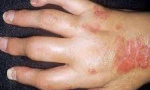 Особенности развития псориатического артрита, симптомы и лечение патологии