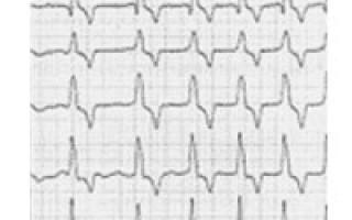Сердцебиение 130 ударов в минуту что делать