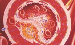 Что такое концентрация ЛПОНП, для чего требуется проведение анализа, какие болезни сопровождает повышение ЛПОНП
