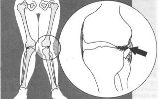 Признаки и причины вальгусной деформации коленных суставов у детей, ее лечение