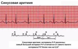 Что такое синусовая аритмия сердца