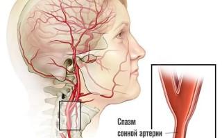 Атеросклеротические бляшки в сонной артерии лечение