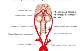Транзиторная ишемическая атака что это такое