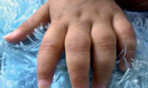 Лечение ювенильного ревматоидного артрита у детей, причины и симптомы патологии