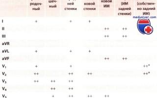 Острый инфаркт миокарда: Диагноз, ЭКГ, стадии