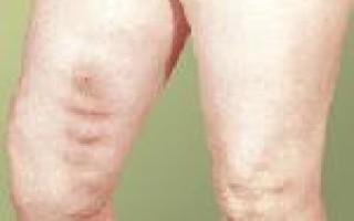 Острый тромбофлебит нижних конечностей