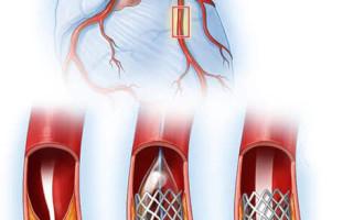 Функциональные классы стенокардии