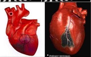 Лечение инфаркта миокарда у пожилых