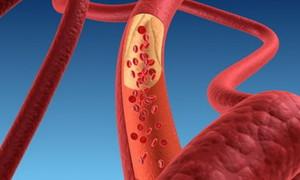Профилактика стенокардии