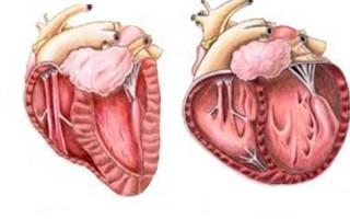 Что означает расширение сердца влево?