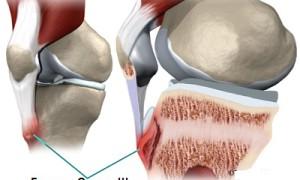 Как проявляется болезнь Шляттера коленного сустава у подростков, симптомы и лечение