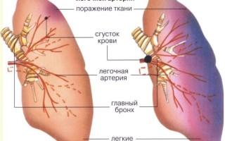 Легочная эмболия симптомы и лечение