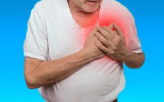 Лечение кардионевроза