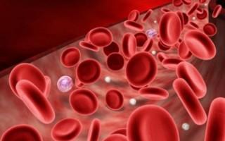 Причины, диагностика и лечение повышенной свертываемости крови
