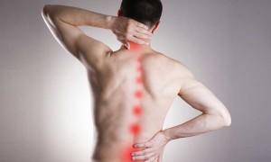 Симптомы и лечение корешкового синдрома грудного отдела позвоночника