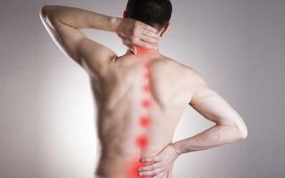 Симптомы и лечение корешкового синдрома поясничного отдела: меры профилактики