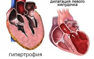 Сердце увеличено в размерах