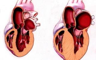 Концентрическая гипертрофия левого желудочка