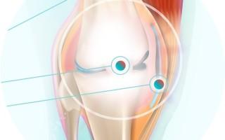 Лечение остеоартроза кистей рук, применение в терапии консервативных и народных методов