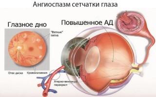 Спазм сосудов глаза симптомы лечение
