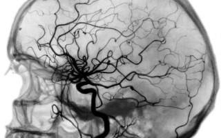 Какие отклонения в строении сосудов можно выявить при церебральной ангиографии?