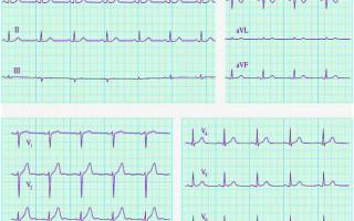 ЭКГ ЭОС — когда проводиться процедура, расшифровка результатов