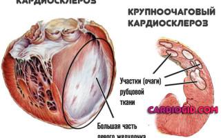 Кардиосклероз что это